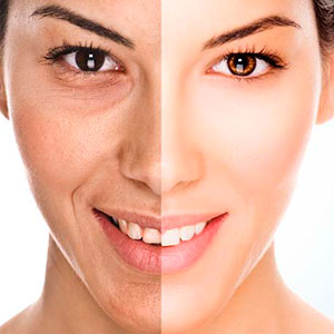 antiaging clinica renacer